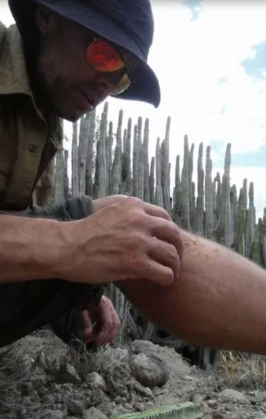 Preparing a wound with aloe from a desert cactus—the healing power of nature